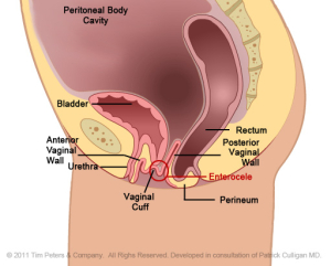 Dr. Veronikis - Dr. Wood - Vaginal Vault Prolapse - St. Louis