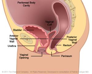 Cystocele - no uterus - stage 2