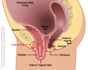 Cystocele-No-Uterus---Image-4