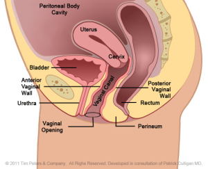 Cystocele-With-Uterus-Image-- Veronikis