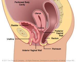 Cystocele-with-Uterus-Veronikis