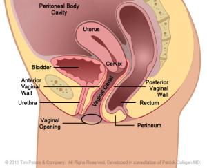 Rectocele with uterus - Dr. Veronikis - Dr. Wood - St. Louis